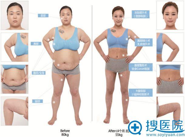 33岁肥妈在韩国珠儿丽华丽变身过程