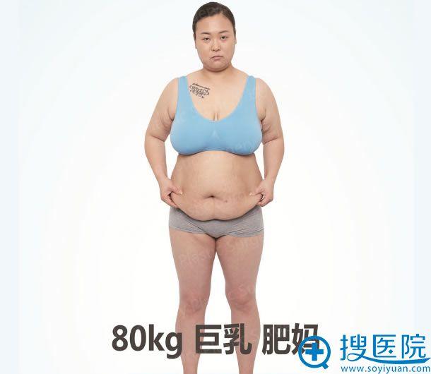 80KG巨乳肥妈整形手术过程