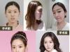在韩国id整形医院做地包天、方下巴和突嘴矫正后的她们美极了