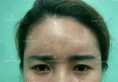 打工妹攒钱去沈阳名流整形医院做了鼻综合隆鼻和双眼皮