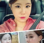 韩国原辰改脸型案例 两鄂手术+面部轮廓+眼型矫正拥有明星脸