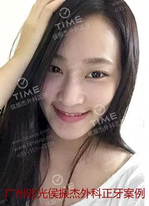 广州时光侯振杰外科正牙地包天牙齿矫正案例 术后美丽大变身