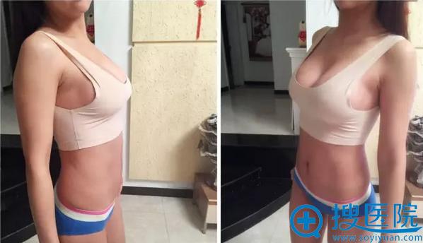 假体隆胸术后一个月侧面效果