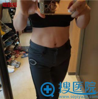 腹部吸脂术后3个月恢复效果
