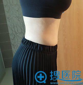 腹部减肥术后照片