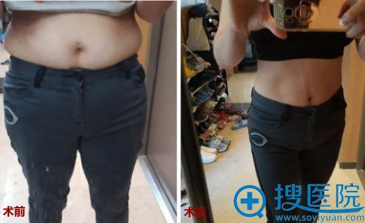韩国365mc腹部抽脂前后对比照