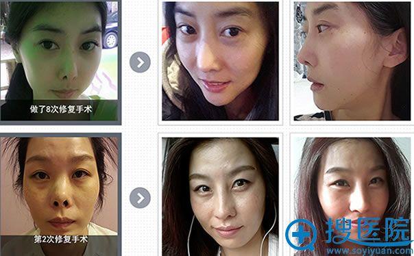 韩国4月31日鼻修复案例图