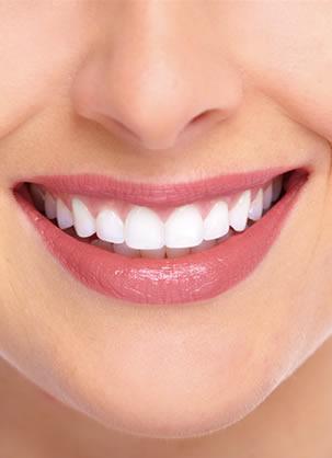 北京佳美口腔烤瓷牙价格表 李宁院长携众牙科医师还你一口好牙