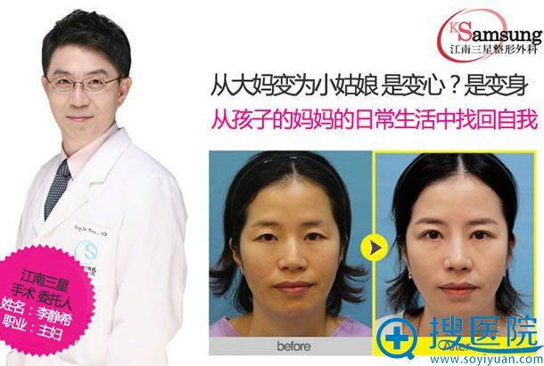 韩国江南三星朴英进院长眼鼻整形案例