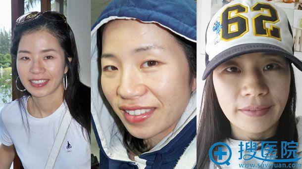 在江南三星做眼鼻手术之前照片