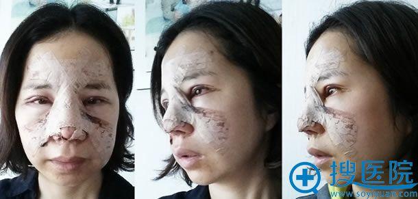 在江南三星做全切双眼皮手术天