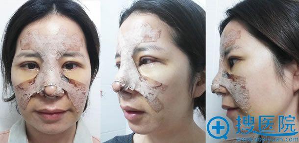 韩国江南三星假体隆鼻手术第三天