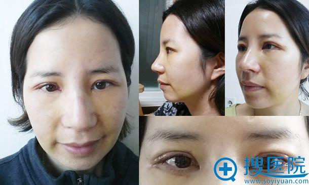 全切双眼皮和假体隆鼻一周照片