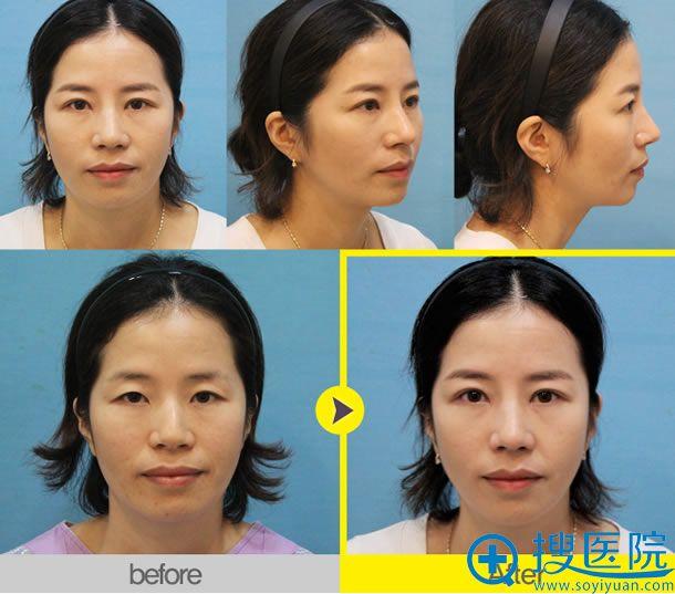 双眼皮和隆鼻前后效果对比照片