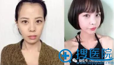 Vline双颚隆鼻手术前后对比