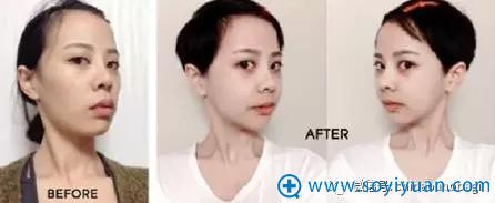 Vline双颚手术前后对比照片