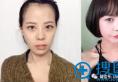 韩国巴诺巴奇整形外科Vline双颚隆鼻案例  从长脸到小V脸的转变