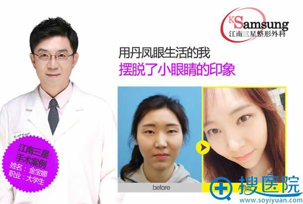 韩国江南三星丁炫硕割双眼皮案例