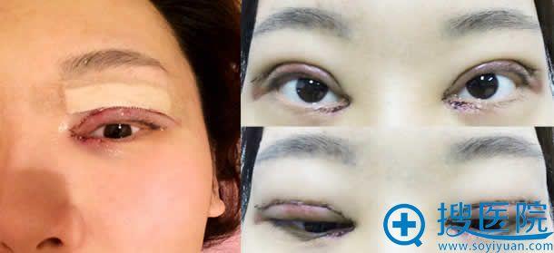 韩国江南三星割双眼皮即刻效果