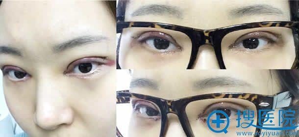 韩国做开眼角提肌手术第2天