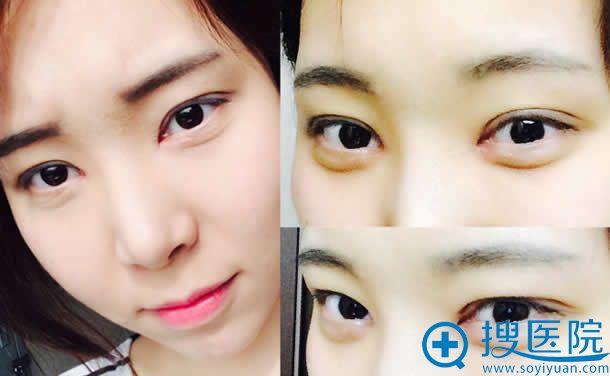 双眼皮开眼角手术2周的效果