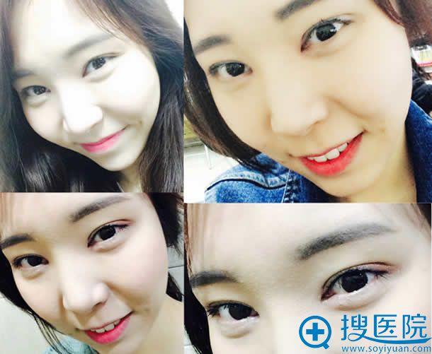 在韩国做完双眼皮手术第3周