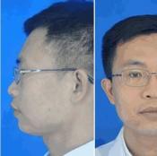 深圳富华注射专家李秀林亲身体验铂金瑞蓝玻尿酸丰下巴附对比照