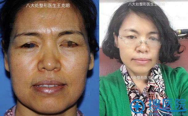 八大处整形医生王克明皮肤松弛提升案例