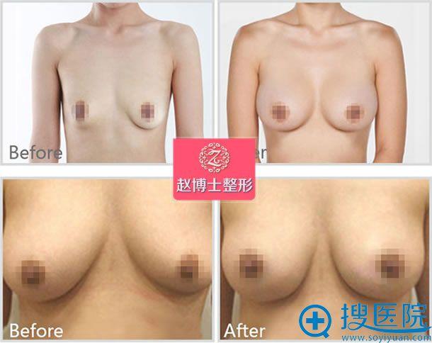 成都赵博士整形胸部下垂矫正效果