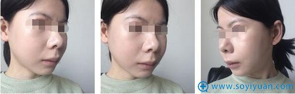 下颌角颧骨下巴手术1个月