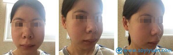 面部轮廓手术14天后口腔拆线。