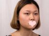上海华美杨亚益park法双眼皮案例 6800元拥有了水灵灵的大眼睛