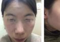 韩国欧佩拉整形外科金锡汉下颌角+颧骨+下巴轮廓三件套恢复日记