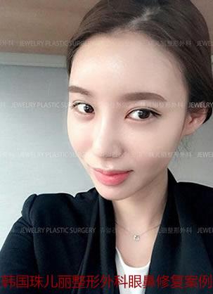 韩国珠儿丽整形双眼皮修复+隆鼻修复+下巴假体填充恢复过程