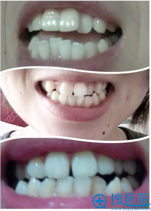 参差不齐的牙齿