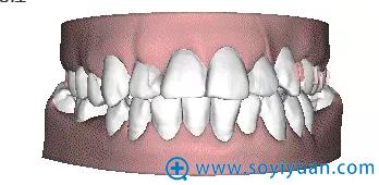 隐形牙齿矫正的可预见性