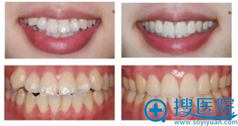 学生隐形牙齿矫正前后对比图