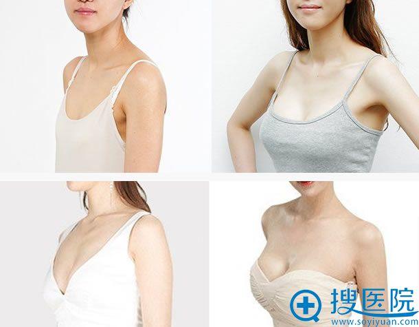 火箭军总医院整形科隆胸案例