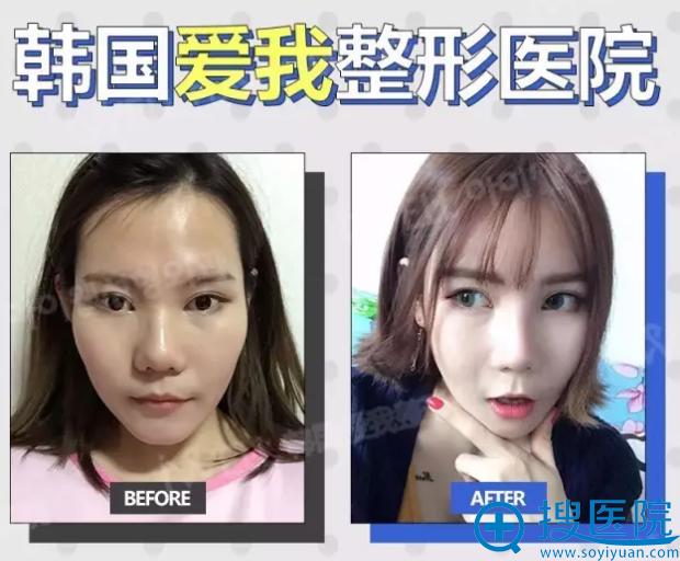 面部轮廓三件套术前术后对比照