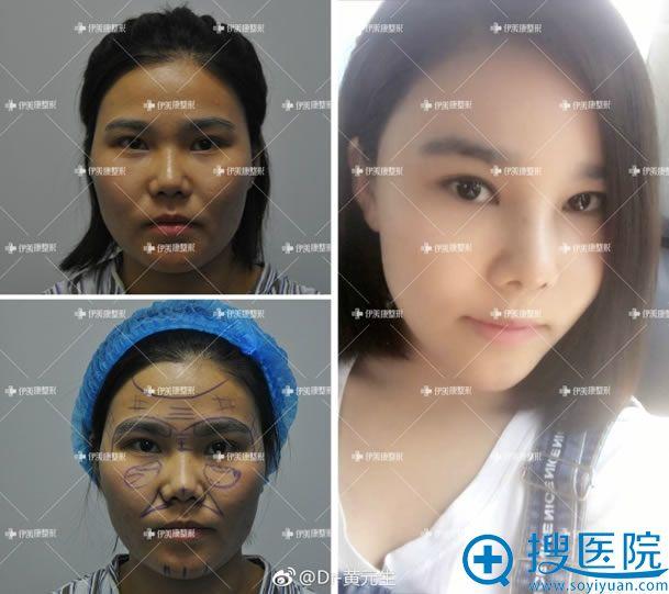 北京伊美康黄元生脂肪填充案例