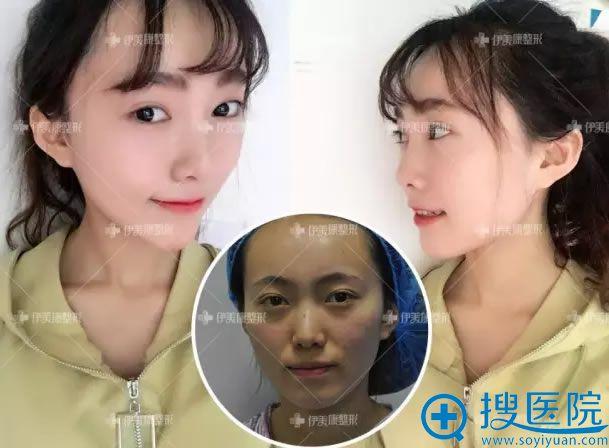 北京黄元生脂肪填充心形脸案例