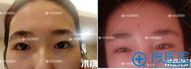 北京黄元生自体脂肪丰太阳穴案例