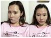 韩国爱我整形医院颧骨+下颌角+隆鼻案例 术后秒变立体小脸