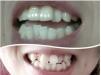 温州矫正牙齿多少钱 温州艺星暑期牙齿矫正全线8折附学生案例