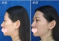 去年暑假找沈阳杏林张宇夫做了期待已久的隆鼻和隆下巴手术