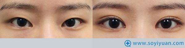 韩国爱我整形医院双眼皮案例