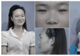 【暑期变美记】杭州美莱双眼皮+鼻综合案例 从女屌丝到惊艳女神