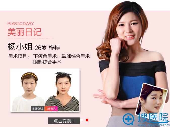 上海首尔丽格下颌角手术案例