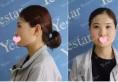 【上海yestar隆鼻案例】谁说我只能是女学霸 隆鼻后让你惊艳