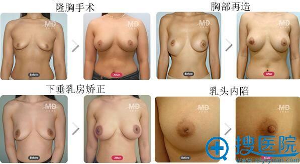 韩国MD李相达隆胸案例对比